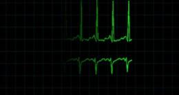 Kardiyak Arrest-EKG RİTMİ